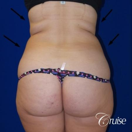 Liposuction Flanks & Abdomen - Before Image 2