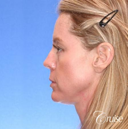 Fat Transfer - Temple, Tear Trough, Lower-Lids, Cheeks - Before and After Image 3