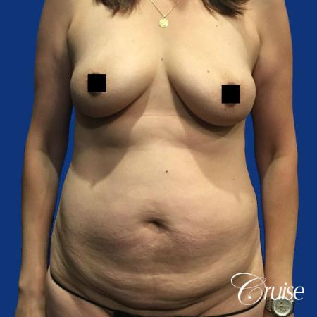 Best tummy tuck incisions orange county - Before Image
