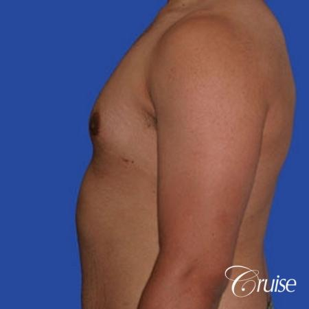 minor gyne young adult with best scars -  After Image 2