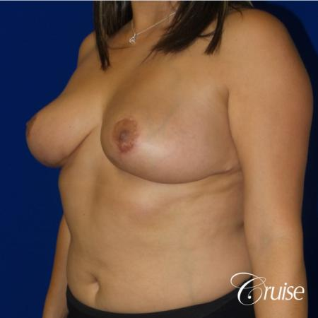 Breast reduction surgery with no implants added -  After Image 2