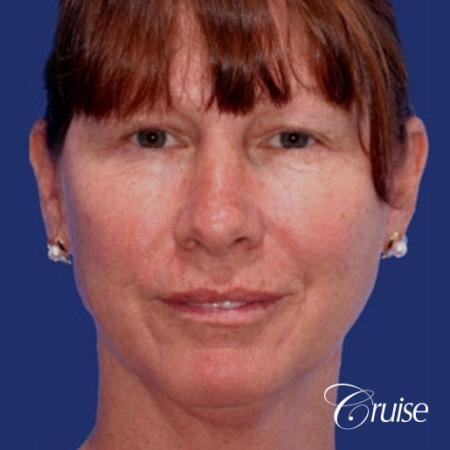 52 year old with chin augmentation and facelift - Before Image 1