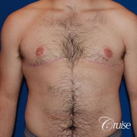 20 with Gynecomastia and puffy nipple -  After Image 1