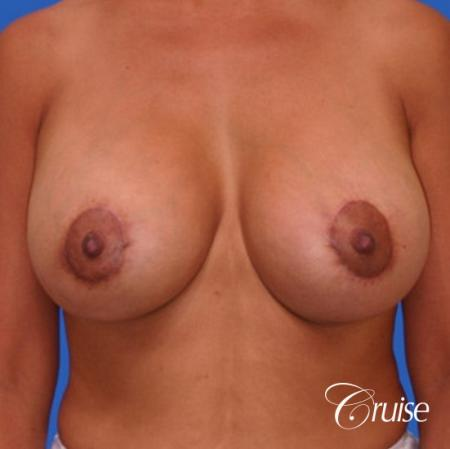 best breast lift donut before and after pictures in Newport Beach -  After 1