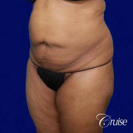 Liposuction Flanks - Before Image 3