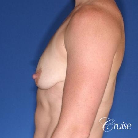 best breast lift anchor on athletic body type - Before and After Image 3