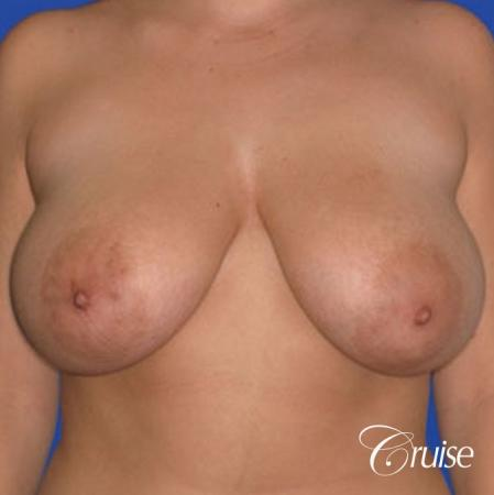 best 19 yr old breast reduction results - Before Image 1