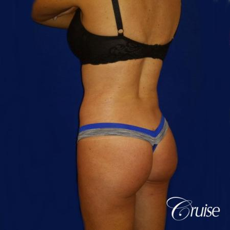 Brazilian Butt Lift Dr. Cruise -  After Image 3