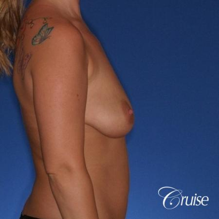 best before and after of breast lift anchor with high profile saline augmentation - Before and After Image 5