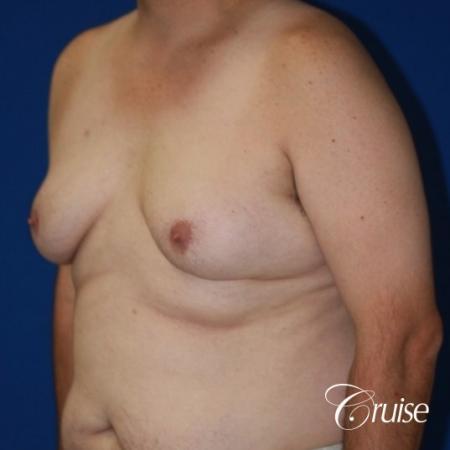 male breast severe gynecomastia free nipple graft anchor - Before Image 3