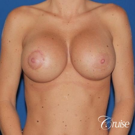breast reconstruction better cleavage and capsulectomy -  After Image 1