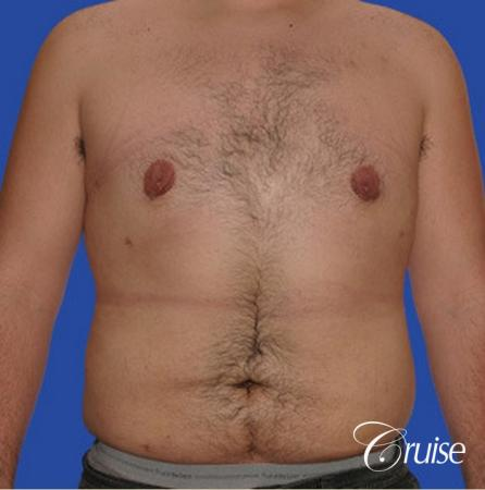 male liposuction abdomen flanks with Gynecomastia -  After Image 1