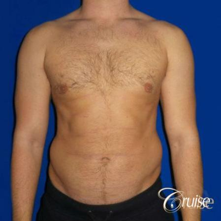 Moderate Gynecomastia -Puffy Nipple -Areola Incision - After Image