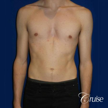 Top Gynecomastia Specialist Dr. Cruise - After Image