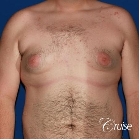moderate gynecomastia with pointy man boobs - Before Image 1