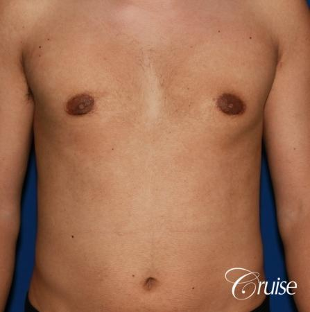mild gynecomastia before and after with puffy nipple -  After Image 1
