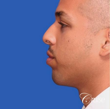 male patient with best pictures of chin implant -  After Image 2