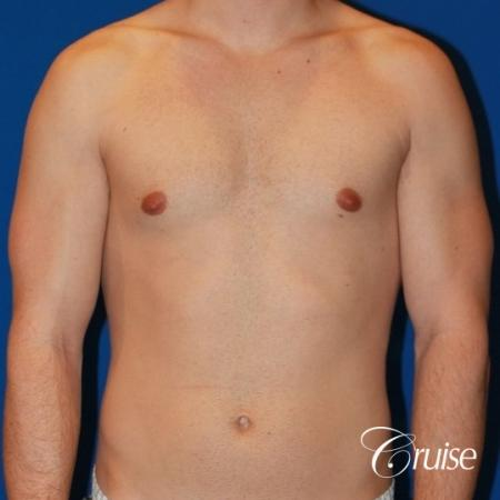 32 yo with Gynecomatia and Puffy Nipple - Before Image 1