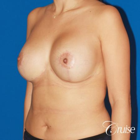 revision breast lift anchor with saline implants -  After Image 3