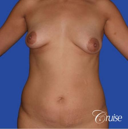 mommy makeover with silicone lollipop lift with best scars - Before