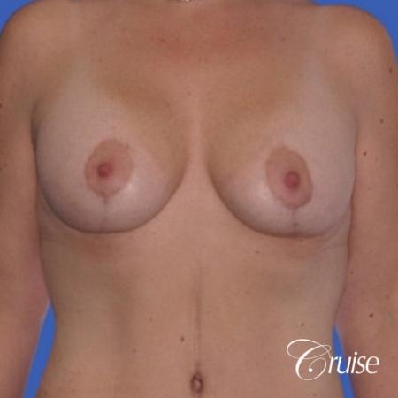 best photos of breast lift anchor on 39 yr old -  After Image 1