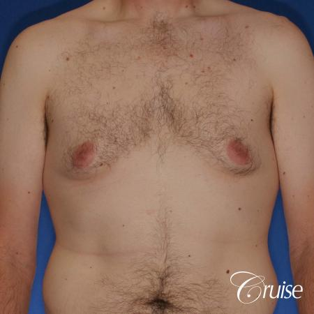 adult male with moderate gynecomastia gets donut lift - Before Image 1