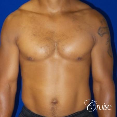 gynecomastia caused by testosterone -  After Image 1