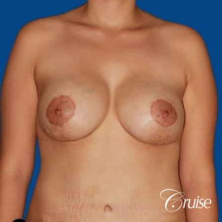 best breast lift anchor by top plastic surgeon in Newport Beach -  After Image 1