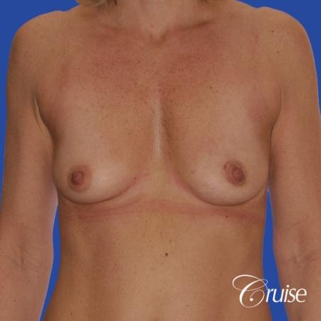 breast lift anchor with silicone implants on adult - Before Image 1