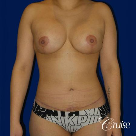 Extended Tummy Tuck, BBL, Breast Lift Anchor With Silicone - After Image 1