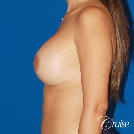 revision breast lift anchor with saline implants -  After Image 2
