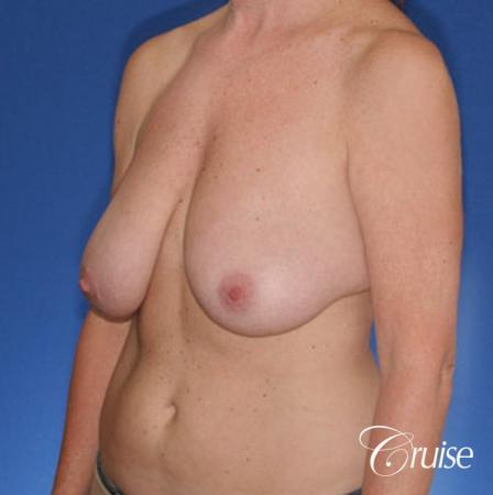 best breast reduction surgery with saline implants - Before Image 2