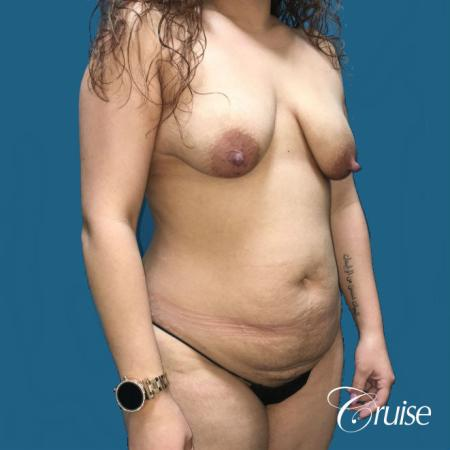 Extended Tummy Tuck, BBL, Breast Lift Anchor With Silicone - Before Image 3