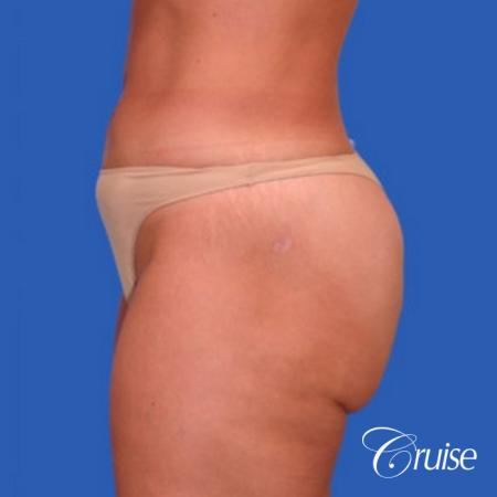 best liposuction abdomen flanks medial and lateral thighs dramatic -  After Image 2
