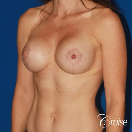young woman with silicone breast lift anchor -  After Image 3