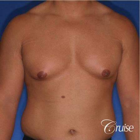 donut lift gynecomastia moderate adult - Before Image 1