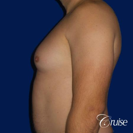 male breast reduction surgery - Before and After Image 3