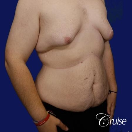 Severe Gynecomastia- Free nipple Graft - Before and After Image 3