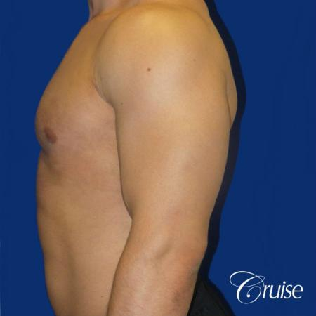 Body Builder Gynecomastia -Areola Incision - After Image 3