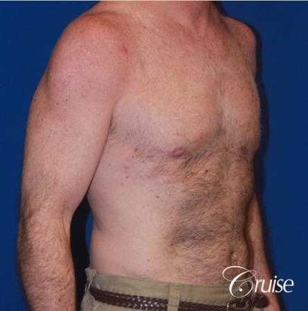 extended pa incision on gynecomastia patient -  After Image 3