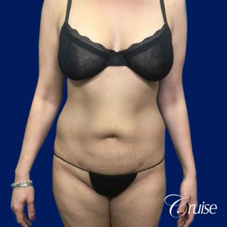 Tummy Tuck Standard Incision - Before Image 1