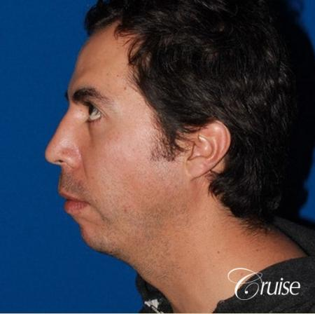 male patient with large chin augmentation - Before Image 2