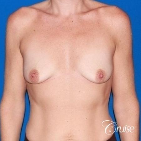 moderate profile saline breast lift anchor before and after pictures - Before Image 1