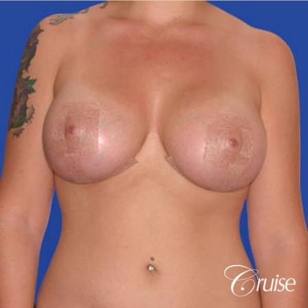 best photos of 20 yr old with saline breast reduction surgery - After Image