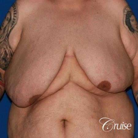 severe gynecomastia with free nipple graft on adult - Before Image 1