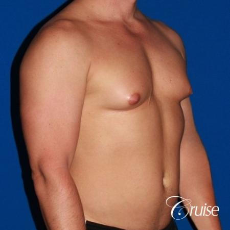 body builder with Gynecomastia puffy nipple - Before Image 4