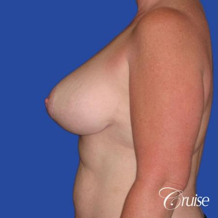 capsular contracture before and after pictures in Newport Beach -  After Image 2