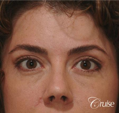 blepharoplasty specialist - After Image