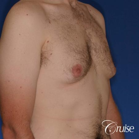 adult male with moderate gynecomastia gets donut lift - Before Image 5