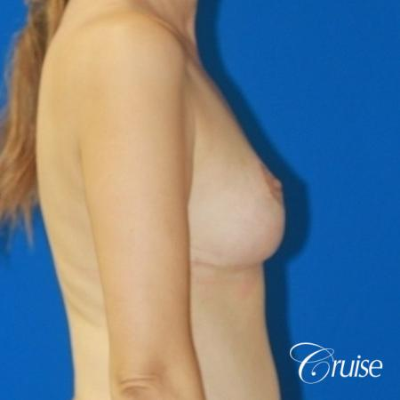 best reduction without implants in Newport Beach -  After Image 3